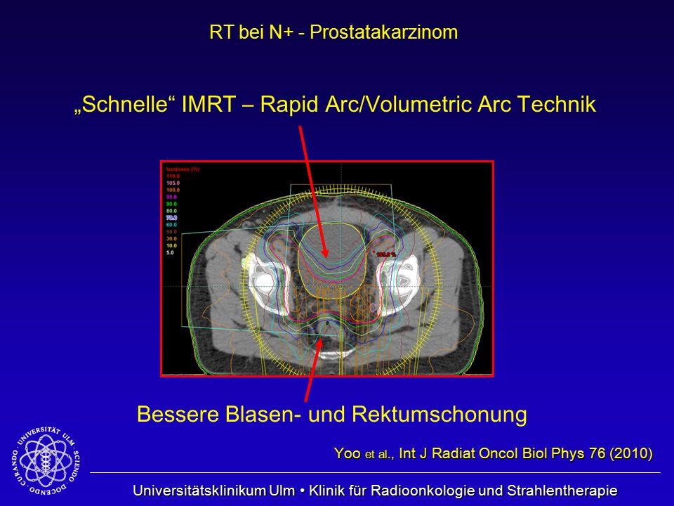 """Universitätsklinikum Ulm Klinik für Radioonkologie und Strahlentherapie RT bei N+ - Prostatakarzinom """"Schnelle"""" IMRT – Rapid Arc/Volumetric Arc Techni"""