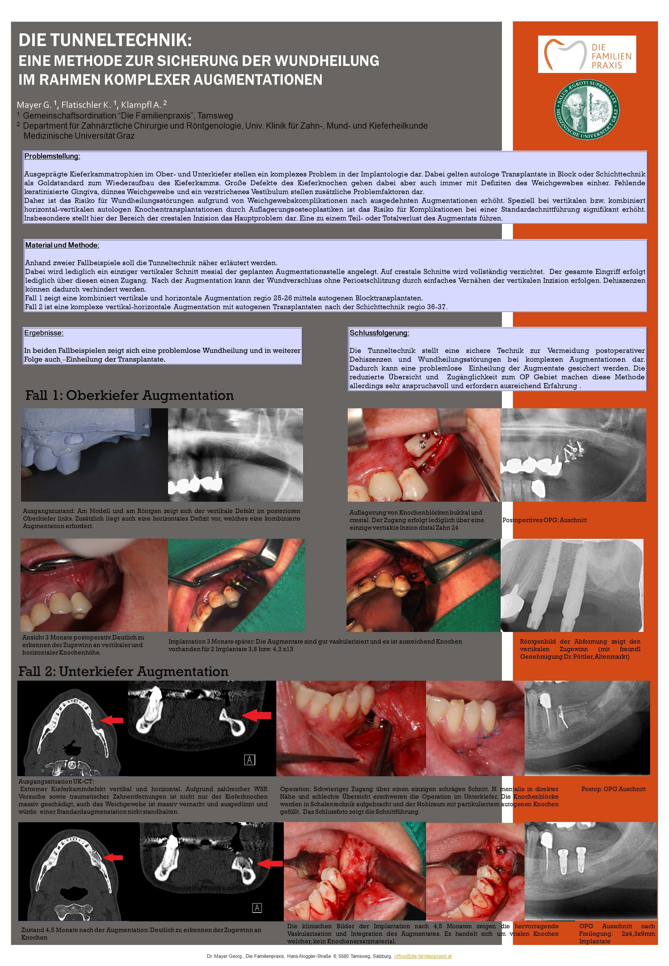 Problemstellung: Ausgeprägte Kieferkammatrophien im Ober- und Unterkiefer stellen ein komplexes Problem in der Implantologie dar.