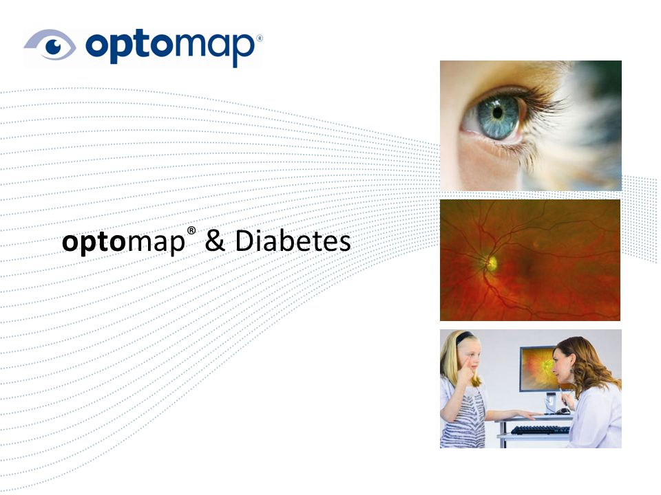 1 optomap ® & Diabetes