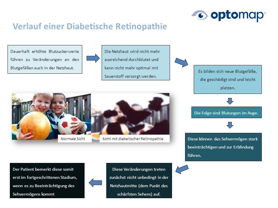 Verlauf einer Diabetische Retinopathie Dauerhaft erhöhte Blutzuckerwerte führen zu Veränderungen an den Blutgefäßen auch In der Netzhaut.