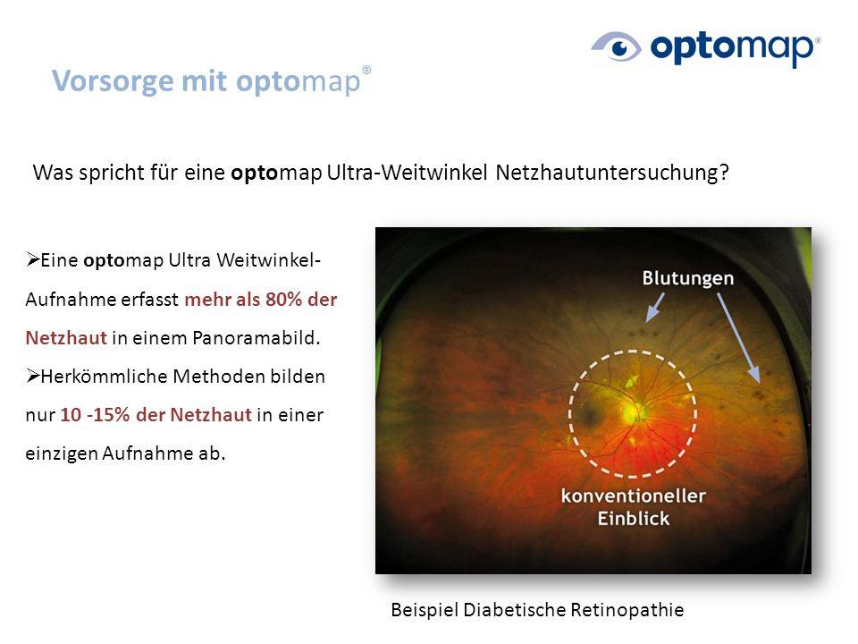 Vorsorge mit optomap ® Was spricht für eine optomap Ultra-Weitwinkel Netzhautuntersuchung.