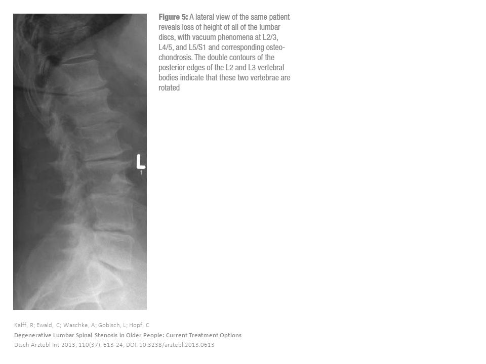 Kalff, R; Ewald, C; Waschke, A; Gobisch, L; Hopf, C Degenerative Lumbar Spinal Stenosis in Older People: Current Treatment Options Dtsch Arztebl Int 2013; 110(37): 613-24; DOI: 10.3238/arztebl.2013.0613