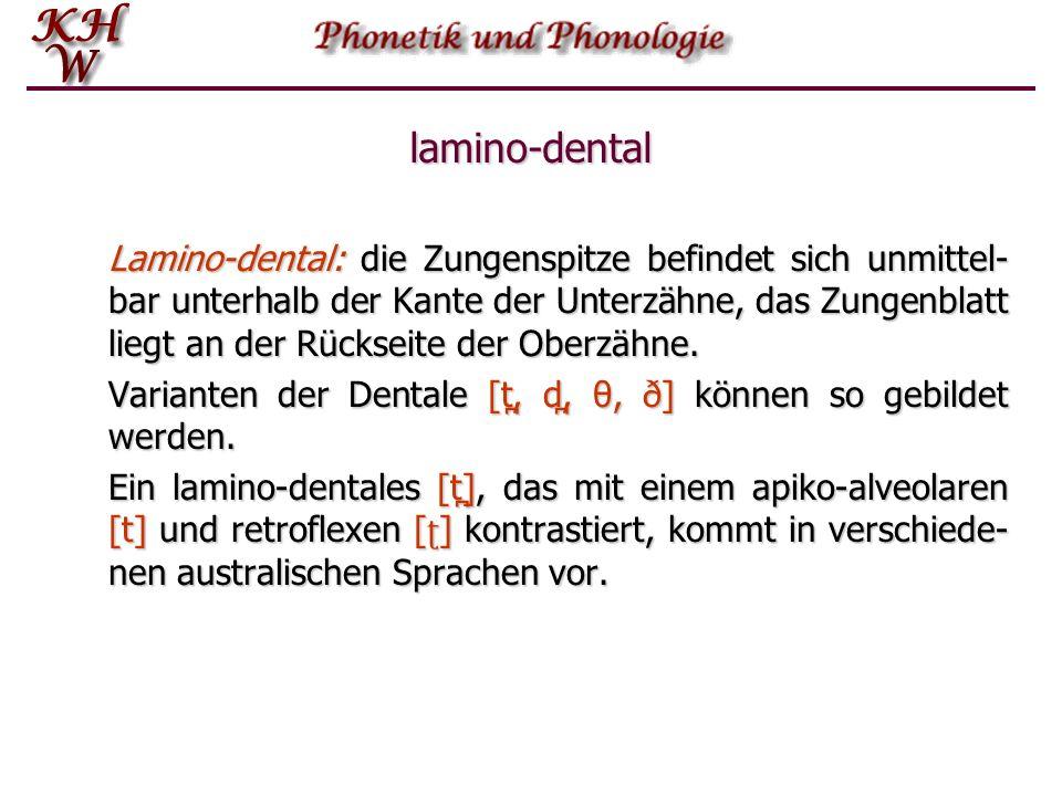 lamino-dental Lamino-dental: die Zungenspitze befindet sich unmittel- bar unterhalb der Kante der Unterzähne, das Zungenblatt liegt an der Rückseite d