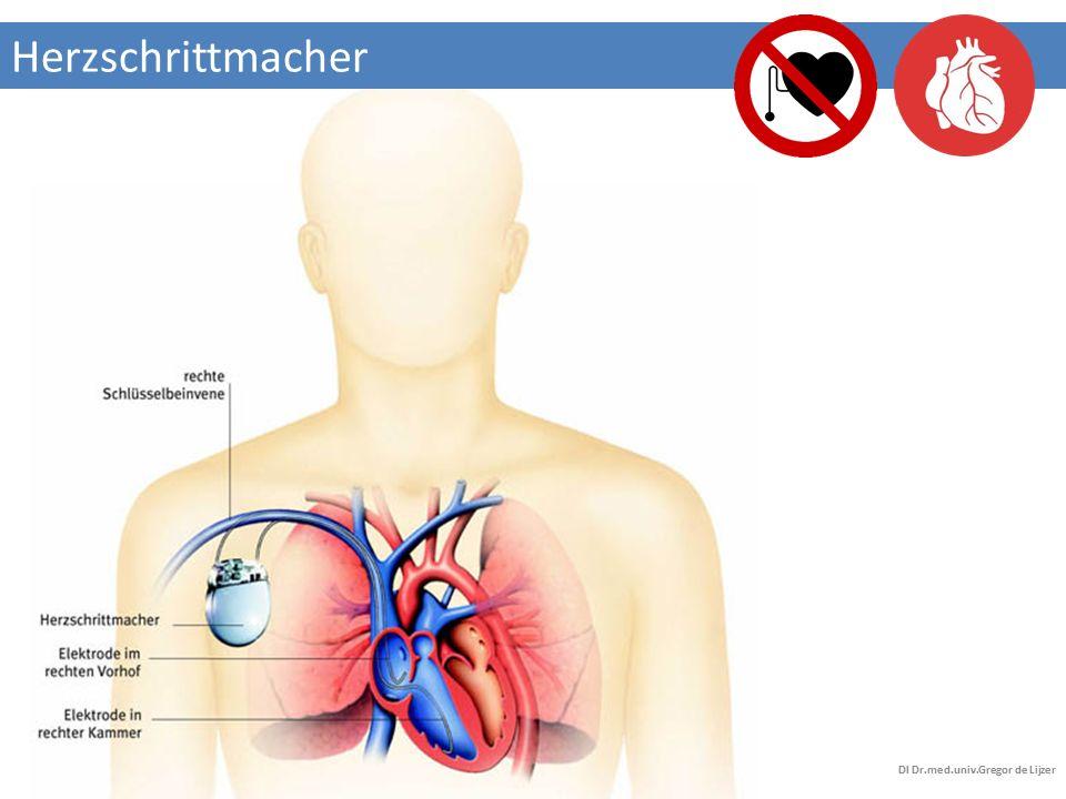ICD(implantierbarer Kardioverter/Defibrillator) DI Dr.med.univ.Gregor de Lijzer