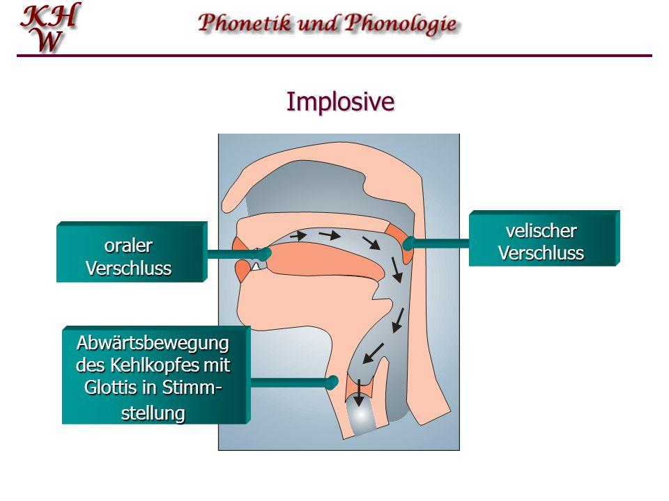 Glottalischer Luftstrom: ingressiv Wenn der Kehlkopf eine Abwärtsbewegung vollzieht entsteht ein Saugeffekt, der im eingeschlossenen Luftraum einen Un