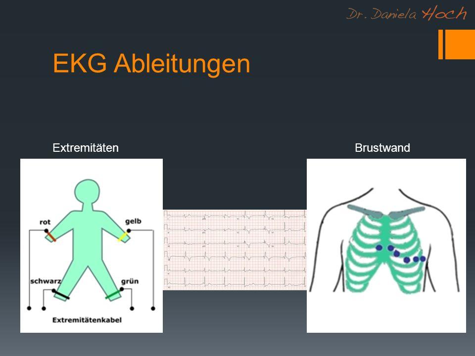 EKG Ableitungen ExtremitätenBrustwand
