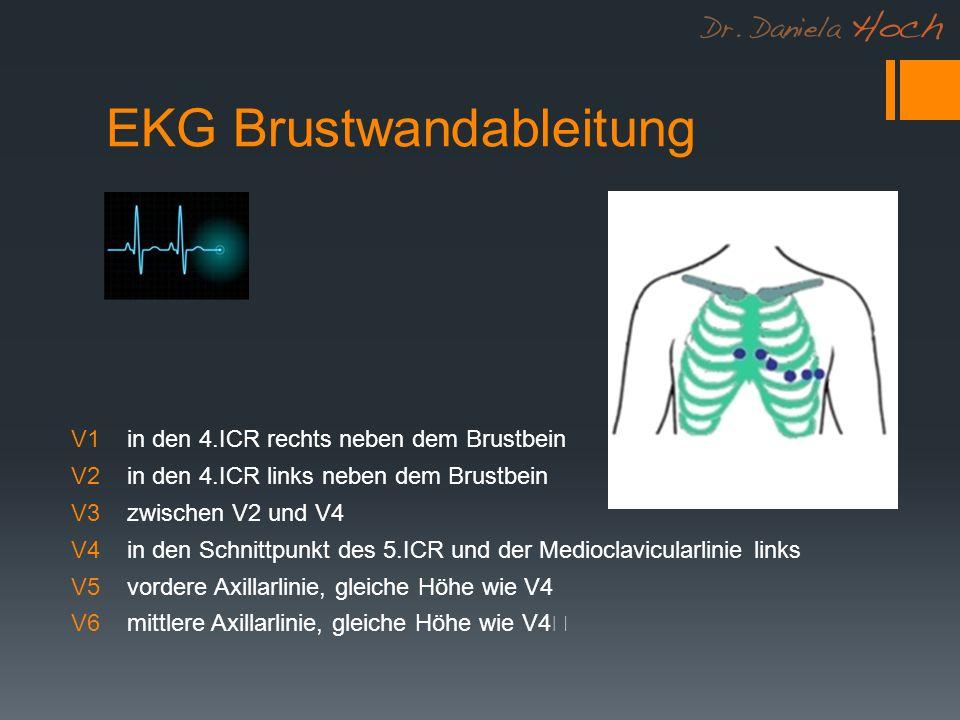 EKG Brustwandableitung V1 in den 4.ICR rechts neben dem Brustbein V2 in den 4.ICR links neben dem Brustbein V3 zwischen V2 und V4 V4 in den Schnittpunkt des 5.ICR und der Medioclavicularlinie links V5 vordere Axillarlinie, gleiche Höhe wie V4