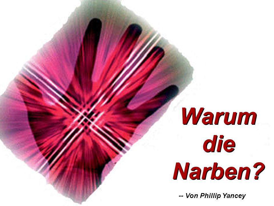 -- Von Phillip Yancey Warum die Narben Warum die Narben