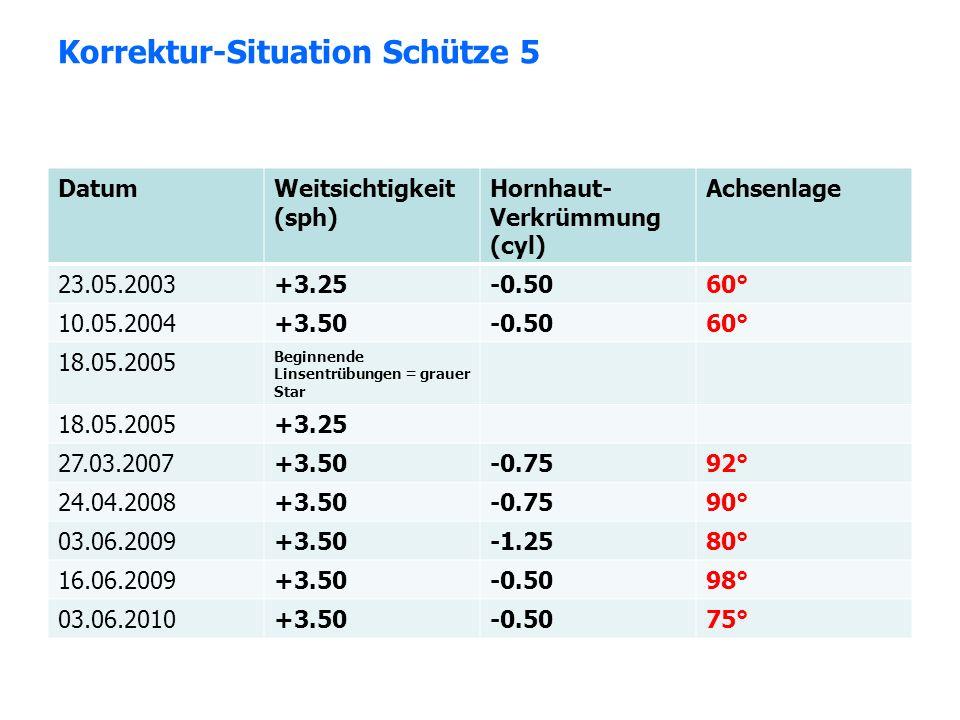 Korrektur-Situation Schütze 5 DatumWeitsichtigkeit (sph) Hornhaut- Verkrümmung (cyl) Achsenlage 23.05.2003+3.25-0.5060° 10.05.2004+3.50-0.5060° 18.05.