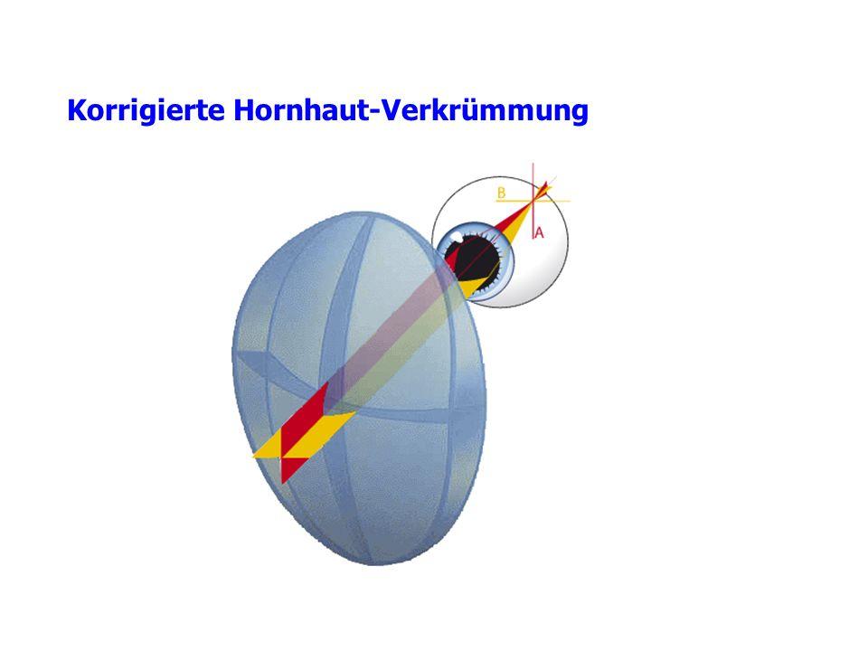 Korrigierte Hornhaut-Verkrümmung