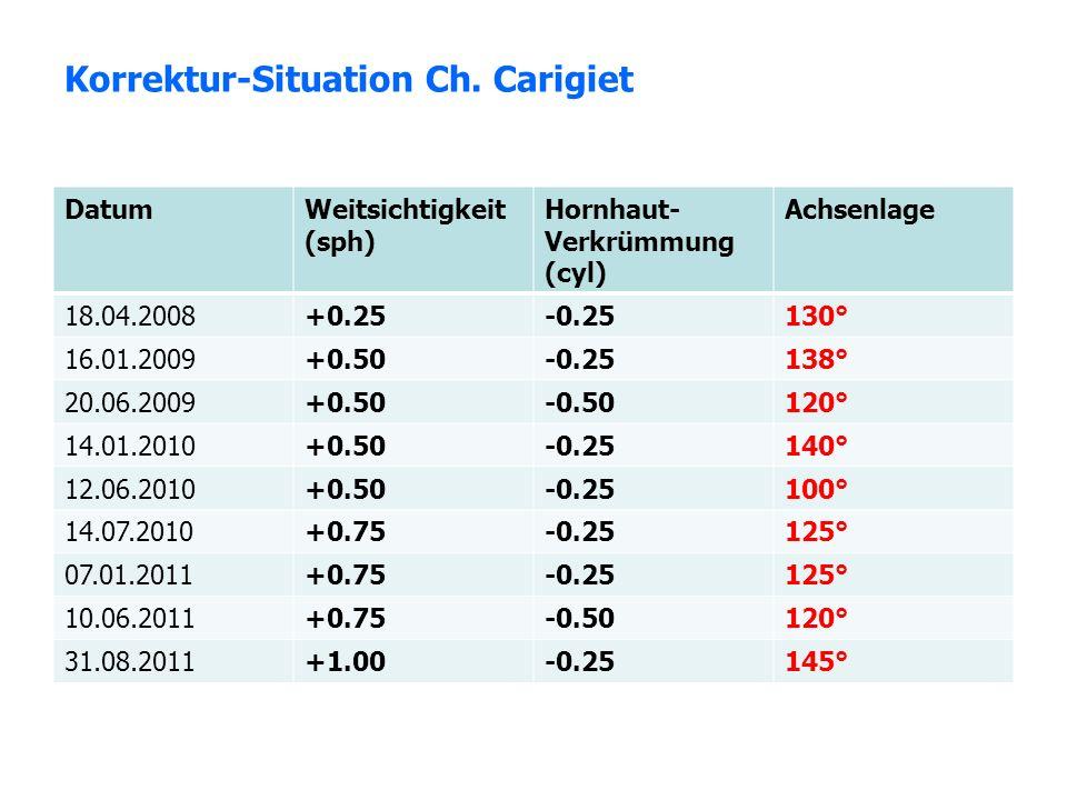 Korrektur-Situation Ch. Carigiet DatumWeitsichtigkeit (sph) Hornhaut- Verkrümmung (cyl) Achsenlage 18.04.2008+0.25-0.25130° 16.01.2009+0.50-0.25138° 2