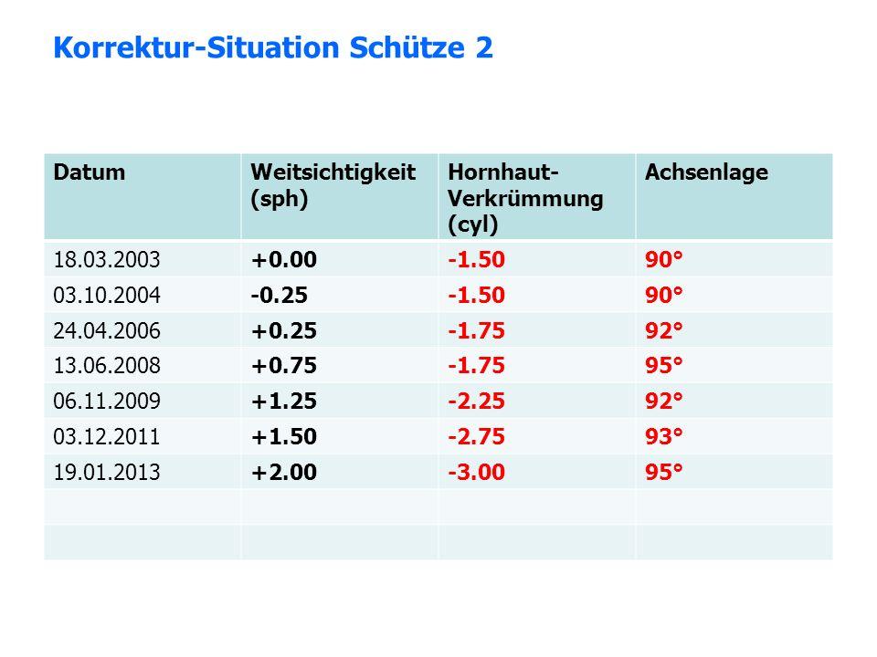 Korrektur-Situation Schütze 2 DatumWeitsichtigkeit (sph) Hornhaut- Verkrümmung (cyl) Achsenlage 18.03.2003+0.00-1.5090° 03.10.2004-0.25-1.5090° 24.04.
