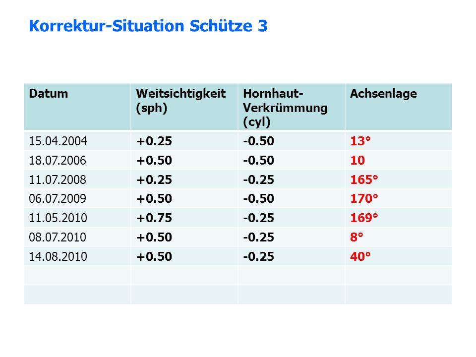 Korrektur-Situation Schütze 3 DatumWeitsichtigkeit (sph) Hornhaut- Verkrümmung (cyl) Achsenlage 15.04.2004+0.25-0.5013° 18.07.2006+0.50-0.5010 11.07.2