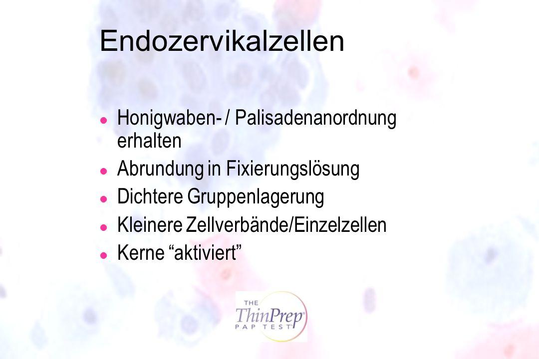 Endozervikalzellen l Honigwaben- / Palisadenanordnung erhalten l Abrundung in Fixierungslösung l Dichtere Gruppenlagerung l Kleinere Zellverbände/Einz