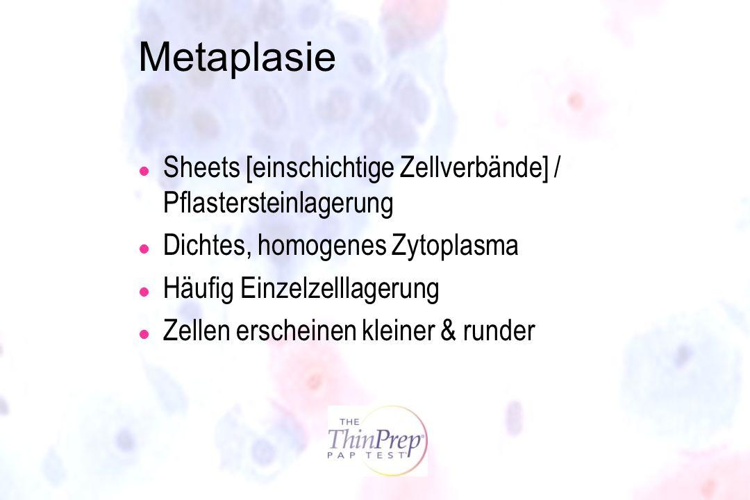 Metaplasie l Sheets [einschichtige Zellverbände] / Pflastersteinlagerung l Dichtes, homogenes Zytoplasma l Häufig Einzelzelllagerung l Zellen erschein