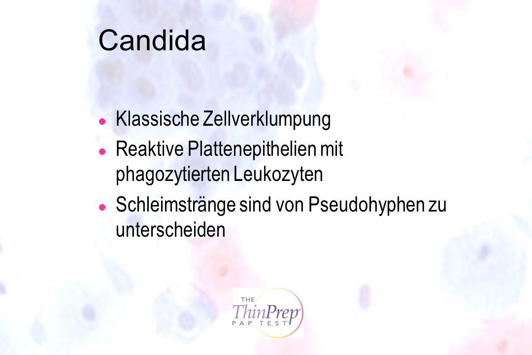 Candida l Klassische Zellverklumpung l Reaktive Plattenepithelien mit phagozytierten Leukozyten l Schleimstränge sind von Pseudohyphen zu unterscheide