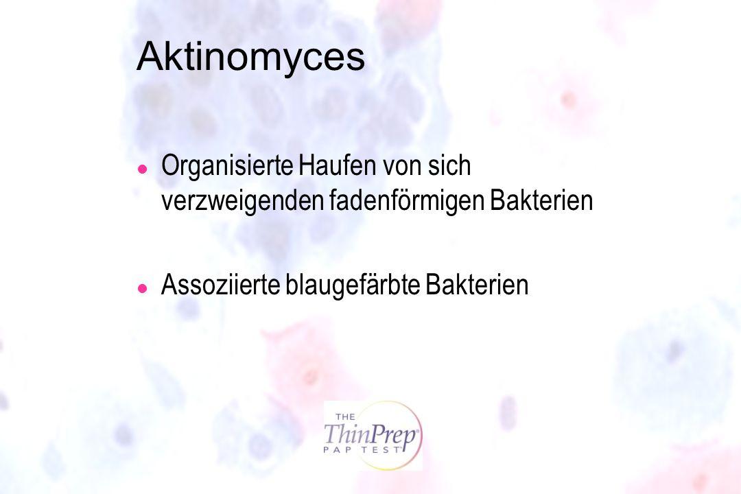 Aktinomyces l Organisierte Haufen von sich verzweigenden fadenförmigen Bakterien l Assoziierte blaugefärbte Bakterien