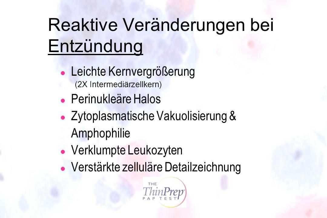 Reaktive Veränderungen bei Entzündung l Leichte Kernvergrößerung (2X Intermediärzellkern) l Perinukleäre Halos l Zytoplasmatische Vakuolisierung & Amp