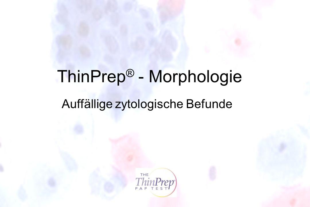 ThinPrep ® - Morphologie Auffällige zytologische Befunde
