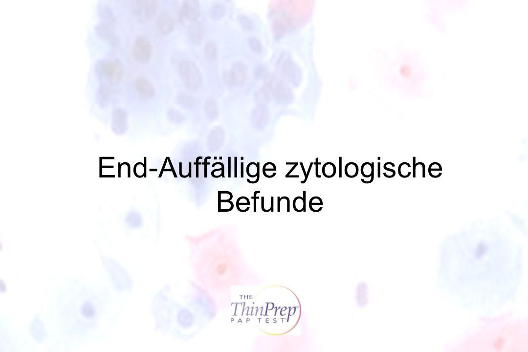 End-Auffällige zytologische Befunde