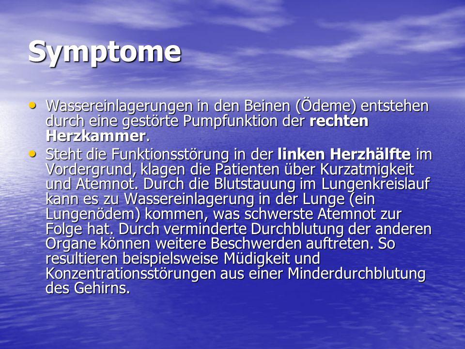 Symptome Wassereinlagerungen in den Beinen (Ödeme) entstehen durch eine gestörte Pumpfunktion der rechten Herzkammer.