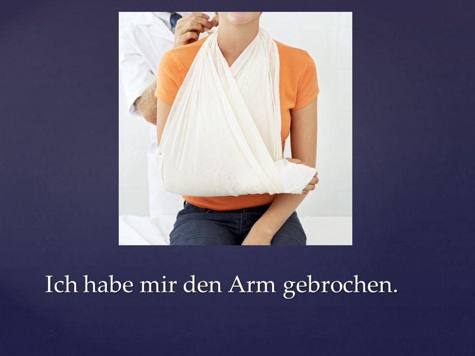 Ich habe mir den Arm gebrochen.
