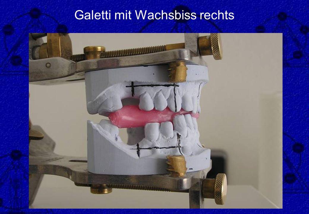 Galetti mit Wachsbiss rechts