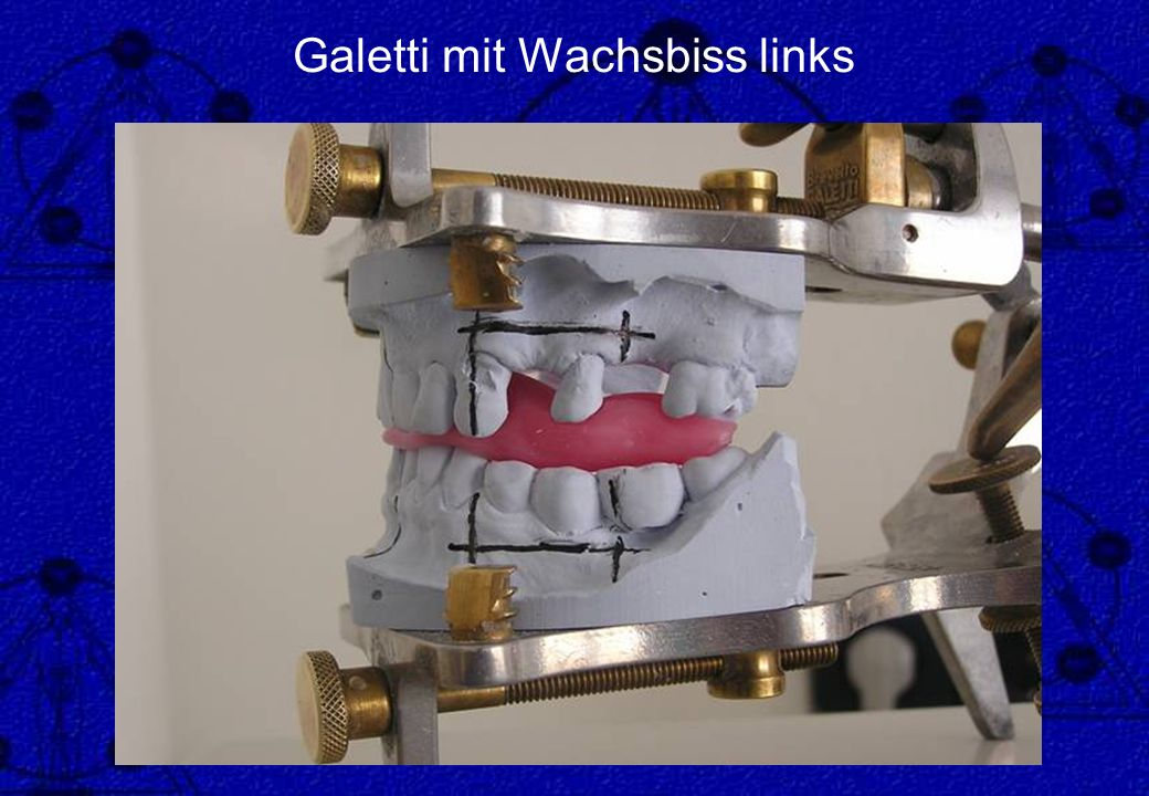 Galetti mit Wachsbiss links
