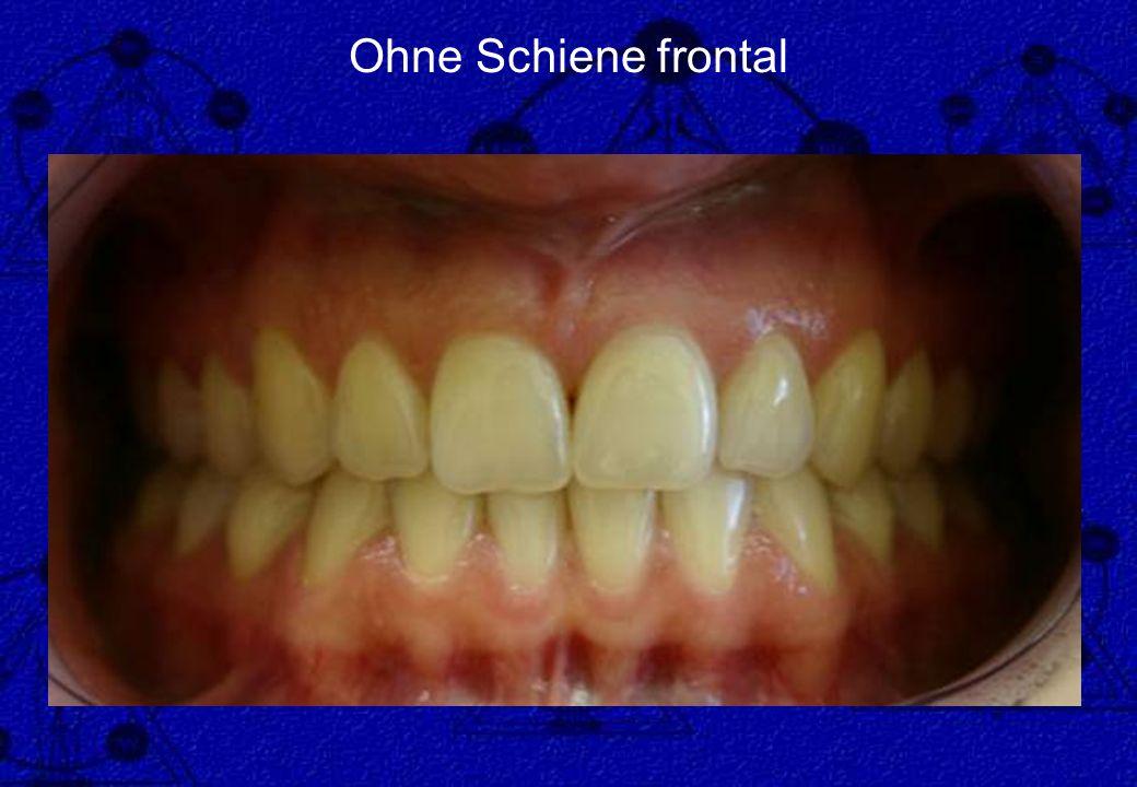 Ohne Schiene frontal