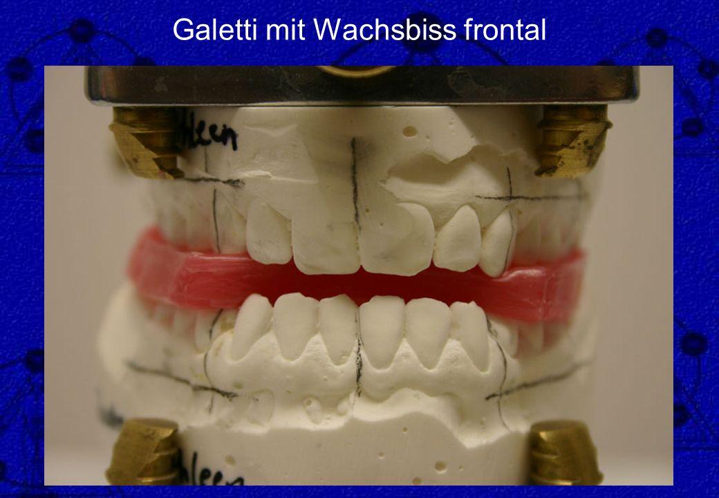 Galetti mit Wachsbiss frontal