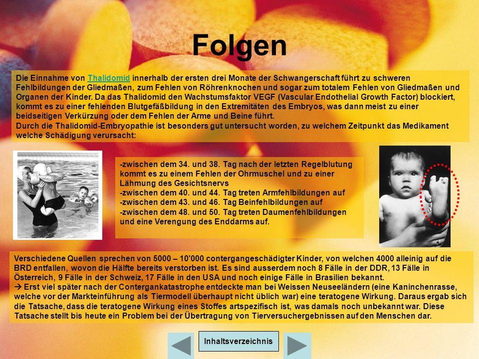 Folgen Inhaltsverzeichnis Folgen Die Einnahme von Thalidomid innerhalb der ersten drei Monate der Schwangerschaft führt zu schweren Fehlbildungen der Gliedmaßen, zum Fehlen von Röhrenknochen und sogar zum totalem Fehlen von Gliedmaßen und Organen der Kinder.