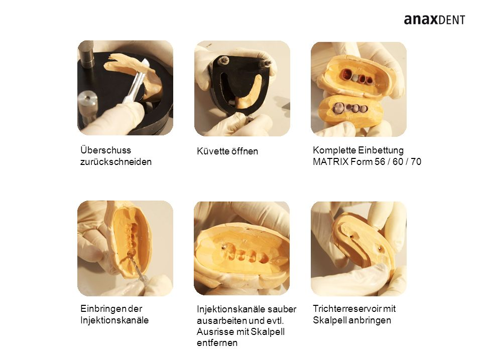 Überschuss zurückschneiden Komplette Einbettung MATRIX Form 56 / 60 / 70 Einbringen der Injektionskanäle Trichterreservoir mit Skalpell anbringen Küvette öffnen Injektionskanäle sauber ausarbeiten und evtl.