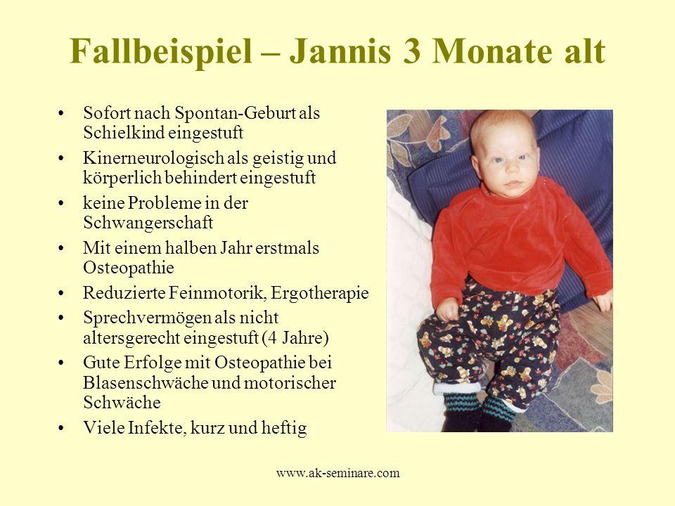 www.ak-seminare.com Fallbeispiel – Jannis 3 Monate alt Sofort nach Spontan-Geburt als Schielkind eingestuft Kinerneurologisch als geistig und körperli