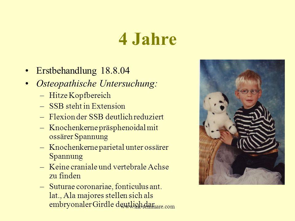 www.ak-seminare.com 4 Jahre Erstbehandlung 18.8.04 Osteopathische Untersuchung: –Hitze Kopfbereich –SSB steht in Extension –Flexion der SSB deutlich r