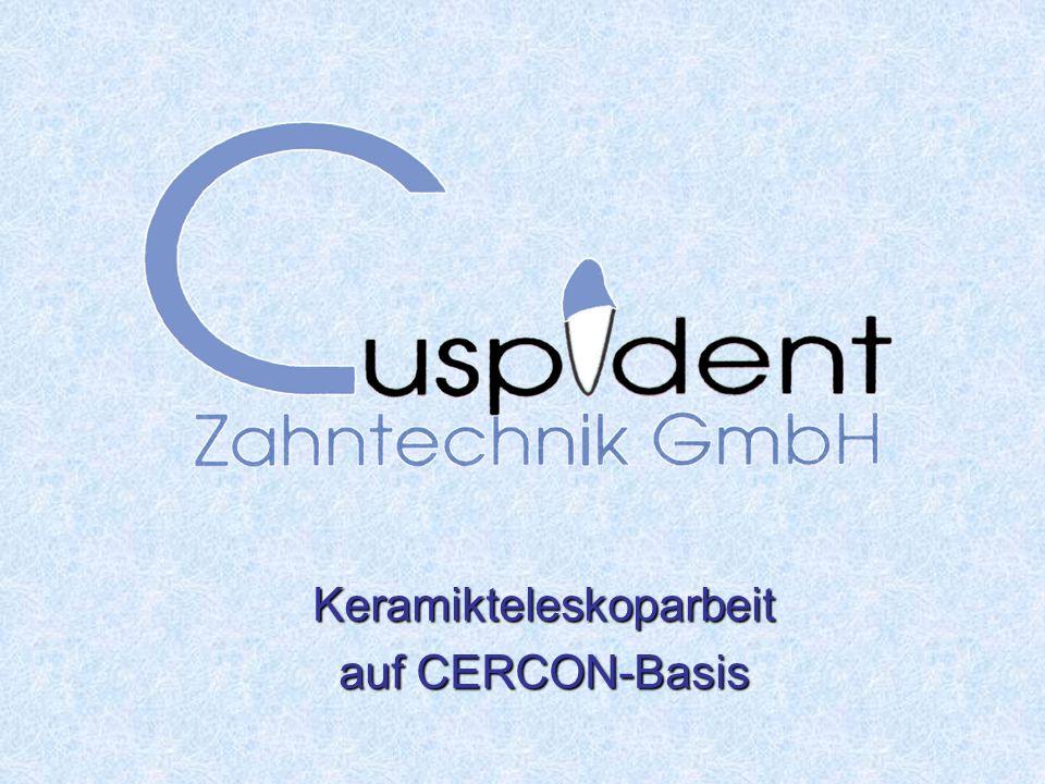 Keramikteleskoparbeit auf CERCON-Basis