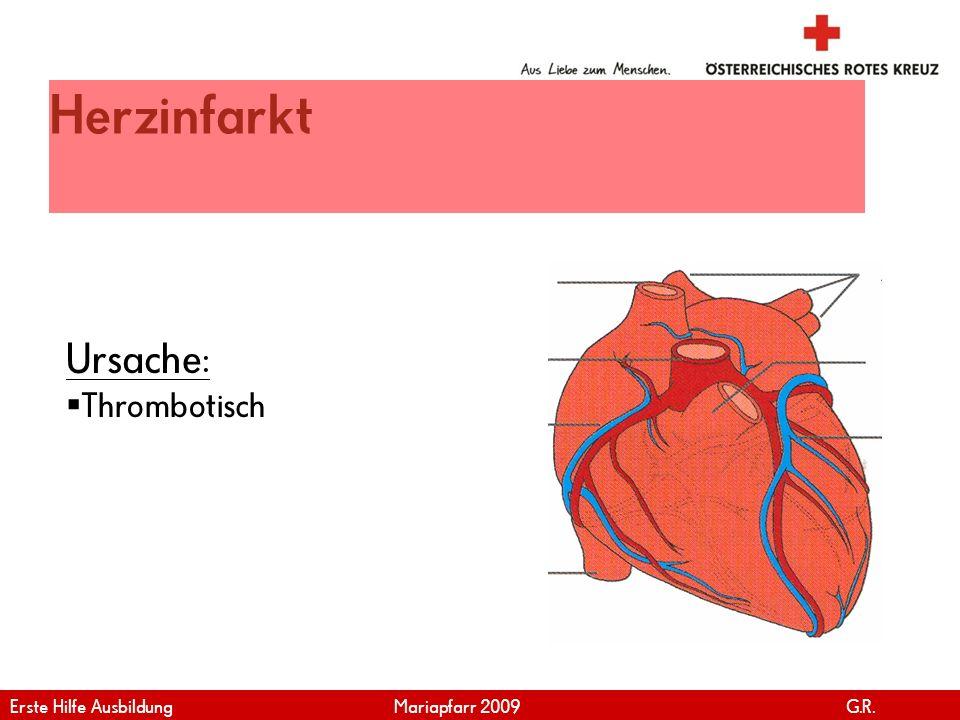 www.roteskreuz.at Version April | 2011 Herzinfarkt Ursache: Thrombotisch Erste Hilfe Ausbildung Mariapfarr 2009 G.R.