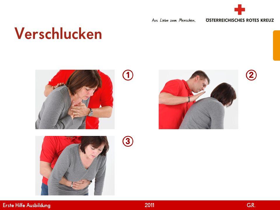 www.roteskreuz.at Version April | 2011 Verschlucken 40 Erste Hilfe Ausbildung 2011 G.R.