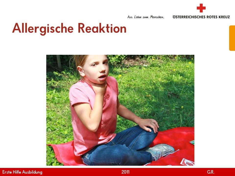 www.roteskreuz.at Version April | 2011 Allergische Reaktion 44 Erste Hilfe Ausbildung 2011 G.R.