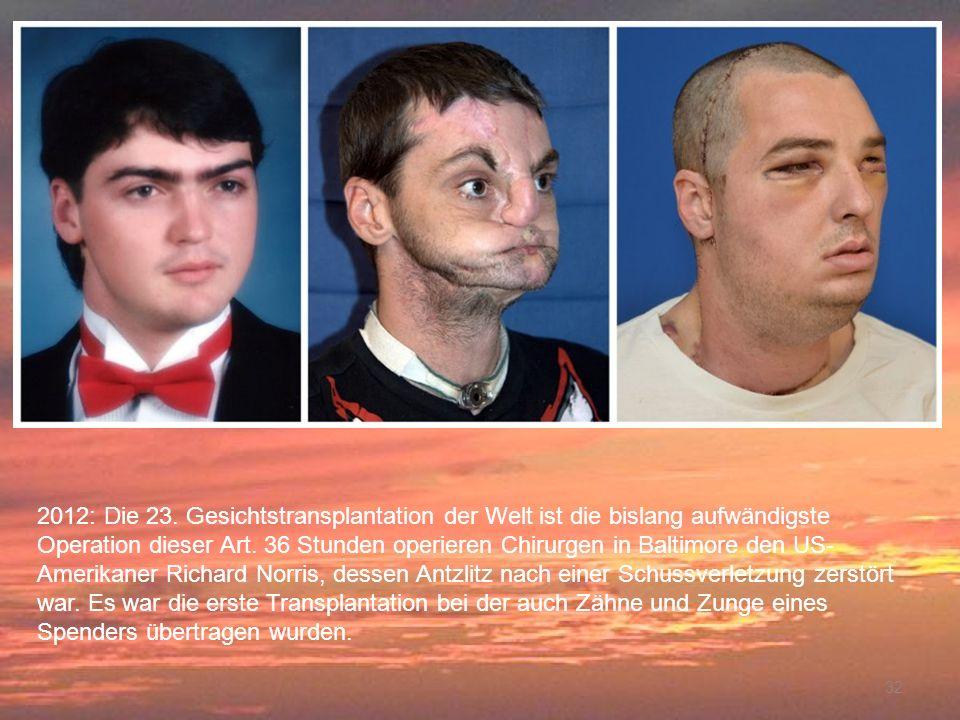 32 2012: Die 23. Gesichtstransplantation der Welt ist die bislang aufwändigste Operation dieser Art. 36 Stunden operieren Chirurgen in Baltimore den U