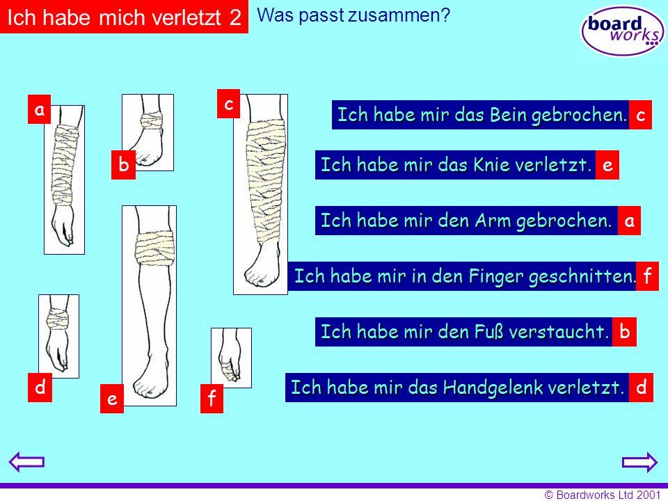© Boardworks Ltd 2001 Was passt zusammen? a b c d ef Ich habe mir den Arm gebrochen. Ich habe mir das Bein gebrochen. Ich habe mir das Knie verletzt.