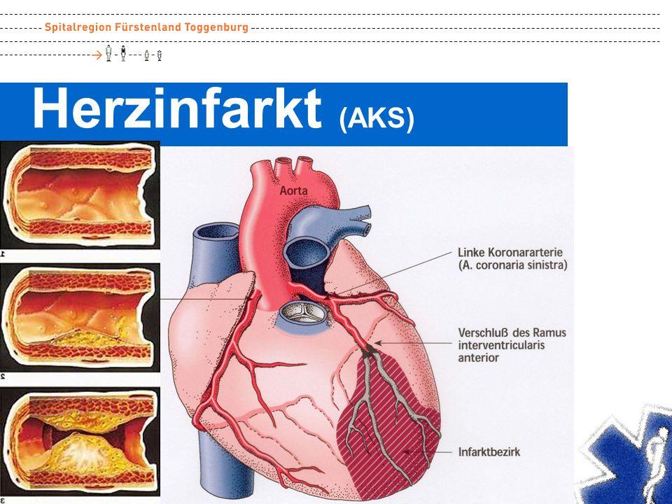 5000 Plötzlicher Herztod 0 1000 2000 3000 4000 Brust- krebs AIDSVerkehrLungen- krebs Schlag- anfall Todesursachen CH