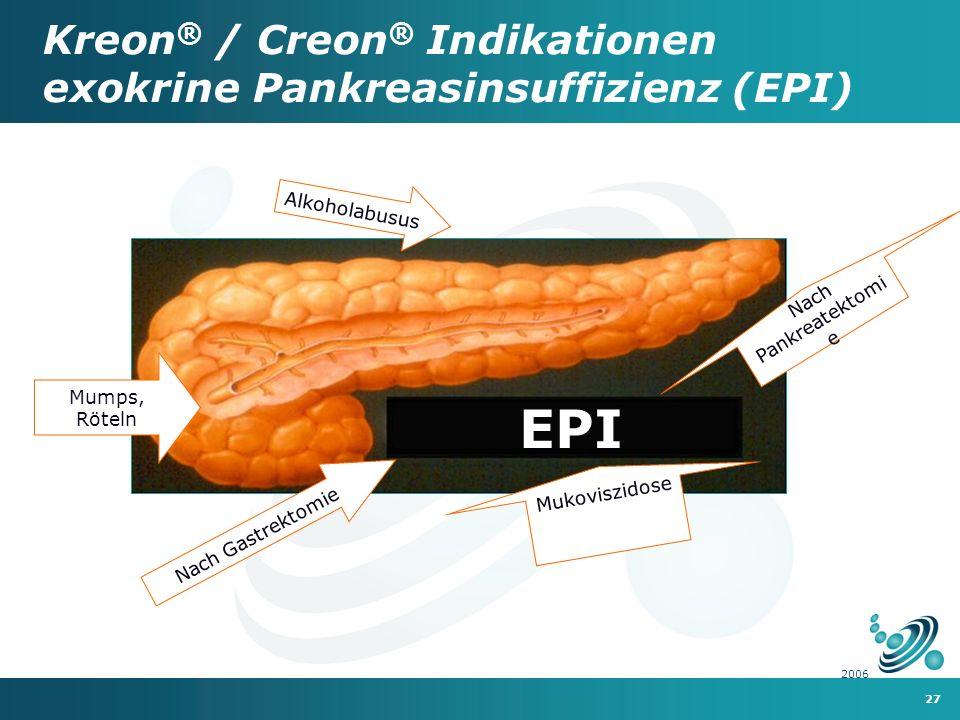 27 2006 EPI Nach Pankreatektomi e Nach Gastrektomie Mukoviszidose Alkoholabusus Mumps, Röteln Kreon ® / Creon ® Indikationen exokrine Pankreasinsuffizienz (EPI)
