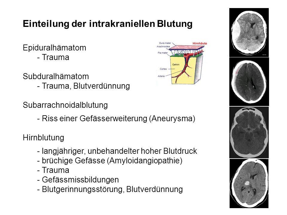 Einteilung der intrakraniellen Blutung Epiduralhämatom - Trauma Subduralhämatom - Trauma, Blutverdünnung Subarrachnoidalblutung - Riss einer Gefässerw