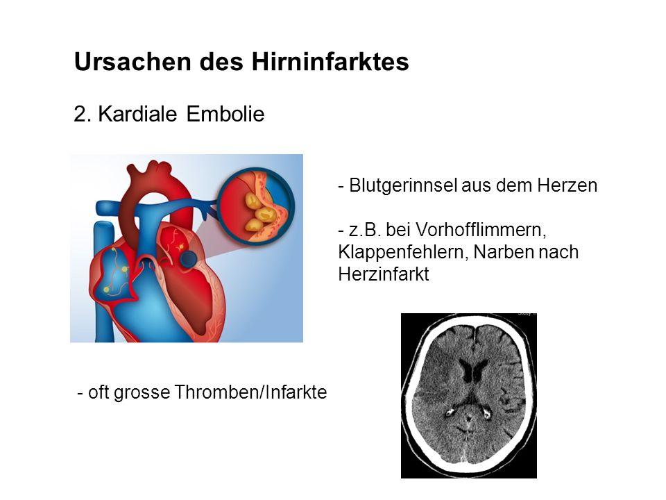 Ursachen des Hirninfarktes 2. Kardiale Embolie - Blutgerinnsel aus dem Herzen - z.B. bei Vorhofflimmern, Klappenfehlern, Narben nach Herzinfarkt - oft