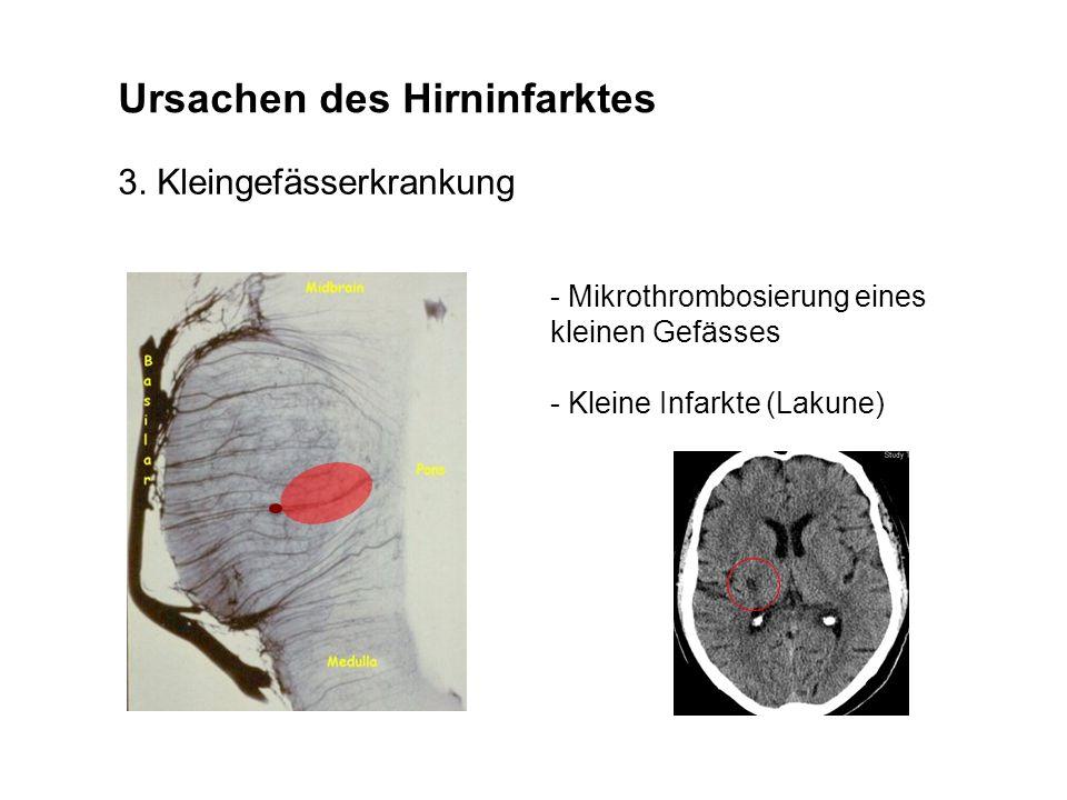 Ursachen des Hirninfarktes 3. Kleingefässerkrankung - Mikrothrombosierung eines kleinen Gefässes - Kleine Infarkte (Lakune)