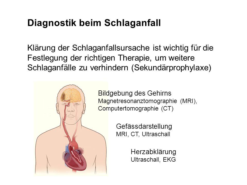 Diagnostik beim Schlaganfall Klärung der Schlaganfallsursache ist wichtig für die Festlegung der richtigen Therapie, um weitere Schlaganfälle zu verhi