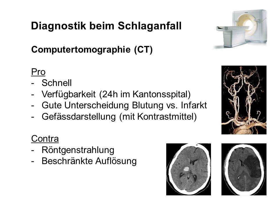 Diagnostik beim Schlaganfall Computertomographie (CT) Pro -Schnell -Verfügbarkeit (24h im Kantonsspital) -Gute Unterscheidung Blutung vs. Infarkt -Gef