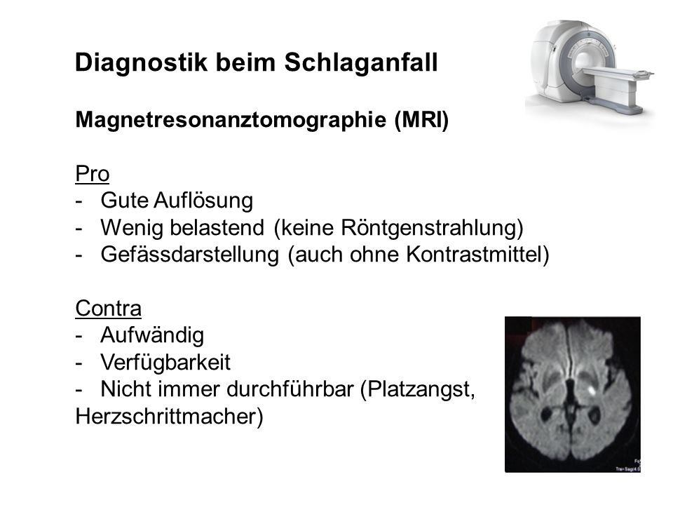 Diagnostik beim Schlaganfall Magnetresonanztomographie (MRI) Pro -Gute Auflösung -Wenig belastend (keine Röntgenstrahlung) -Gefässdarstellung (auch oh