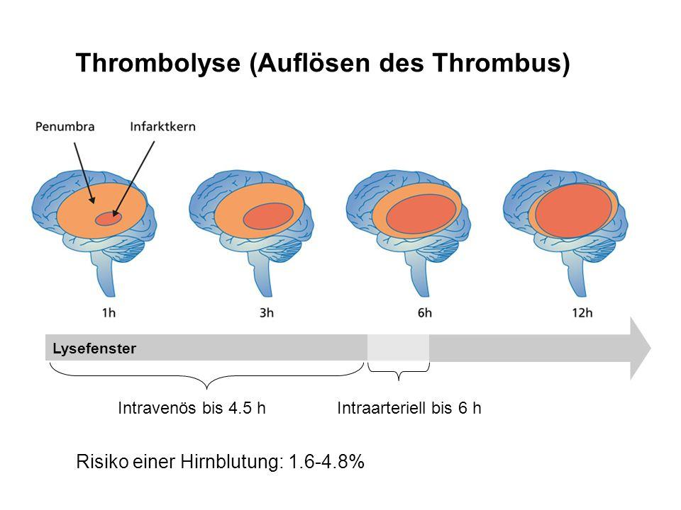 Thrombolyse (Auflösen des Thrombus) Lysefenster Intravenös bis 4.5 hIntraarteriell bis 6 h Risiko einer Hirnblutung: 1.6-4.8%