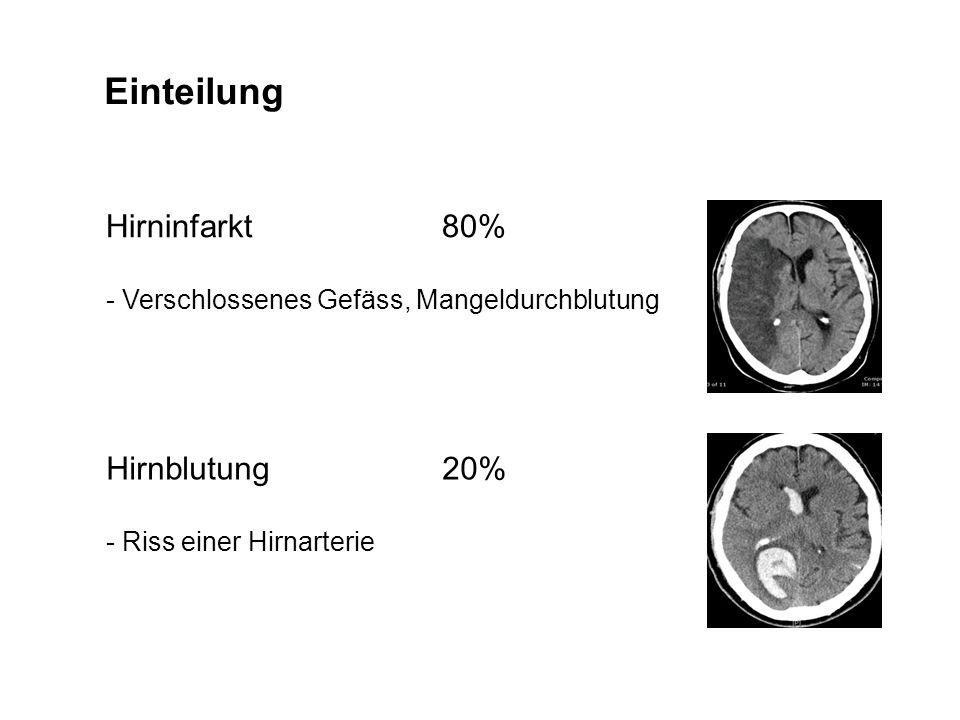 Einteilung Hirninfarkt80% - Verschlossenes Gefäss, Mangeldurchblutung Hirnblutung20% - Riss einer Hirnarterie